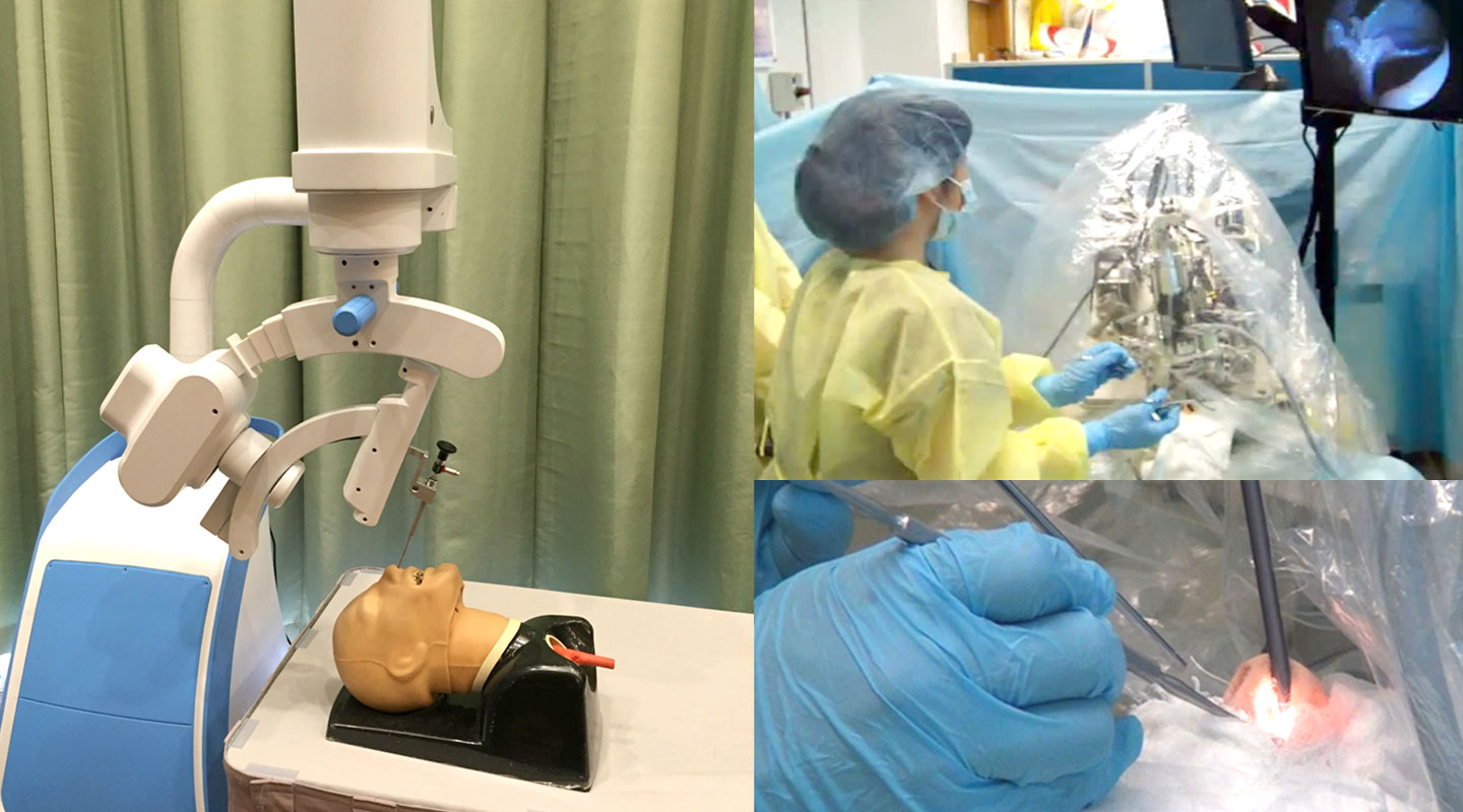 One surgery robot helps with nasal surgery by maneuvering an endoscope mechanically
