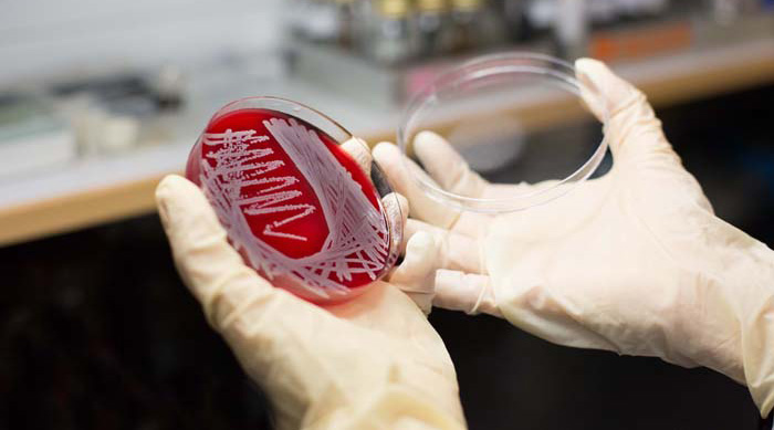 Laboratory Testing for MRSA