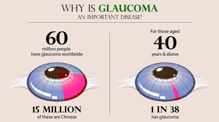 Why is glaucoma an important disease?